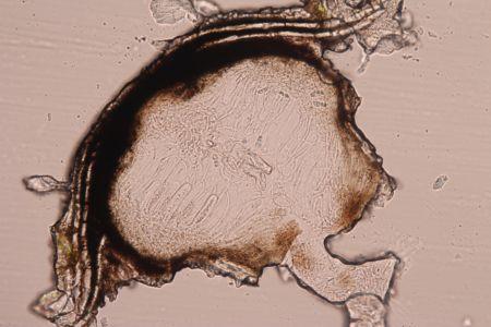 Arthopyrenia analepta cut spore
