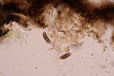 Buellia disciformis Gorgany Sa Spores 2019