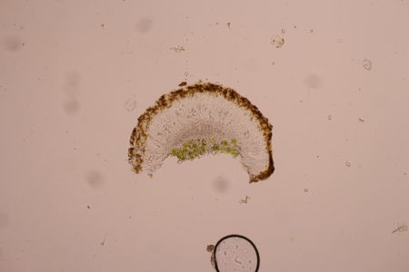 Caloplaca cerinella Spore Verusicky 2020 00001
